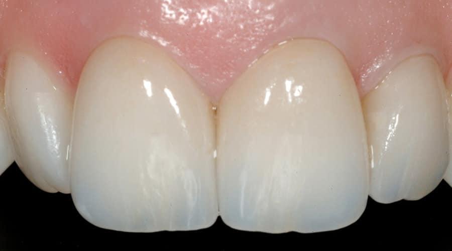 Faccette Dentali Dopo il trattamento con faccette 1 - Faccette Dentali Estetiche. Come riacquistare il bianco perduto?
