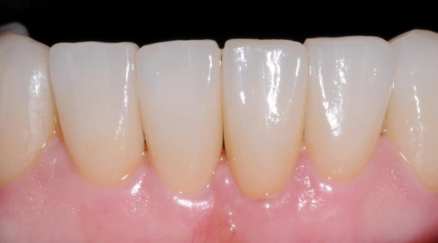 Faccette Dentali Dopo il trattamento con faccette1 1 - Faccette Dentali Estetiche. Come riacquistare il bianco perduto?