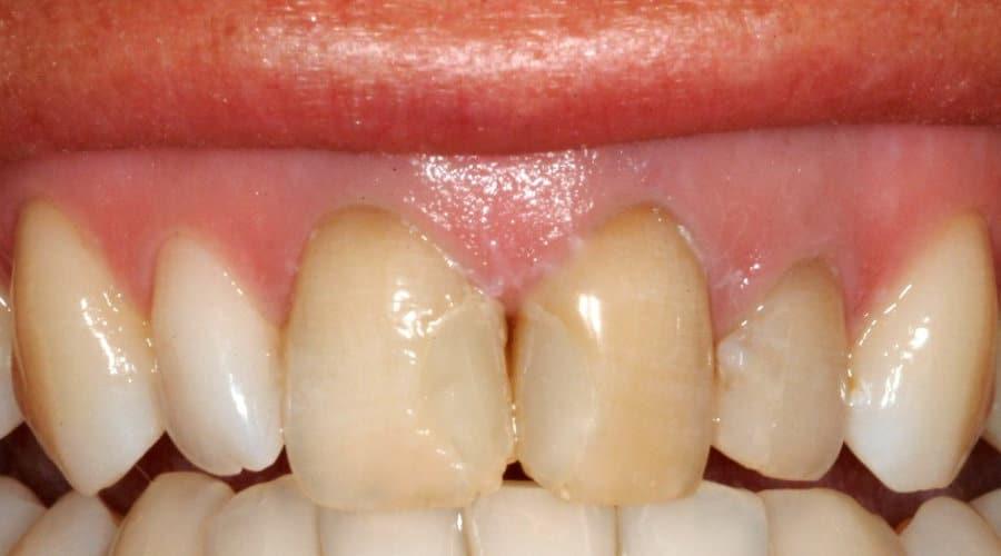 Faccette Dentali prima del trattamento