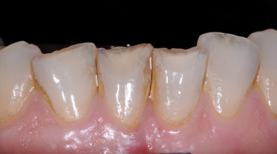 Faccette Dentali Prima del trattamento1 - Faccette dentali: vantaggi, controindicazioni, durata e costi