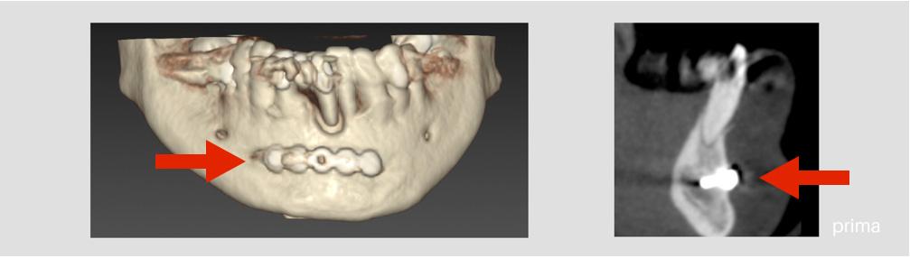 implantologia avanzata x guide 1 - Implantologia Avanzata con X-Guide. Caso clinico