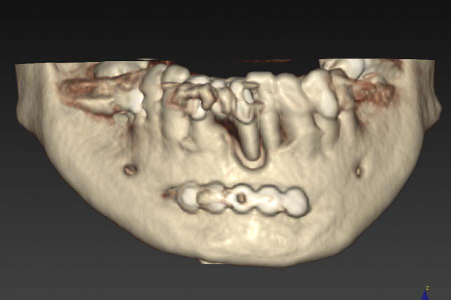 implantologia avanzata x-guide pianificazione