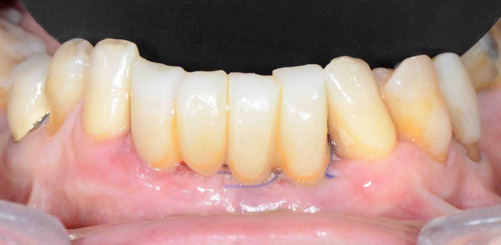 implantologia avanzata x guide provvisorio 1024x501 - Implantologia Avanzata con X-Guide. Caso clinico