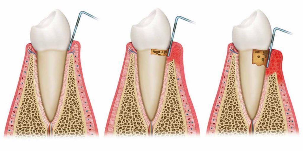 Evoluzione della malattia parodontale (tasche gengivali)