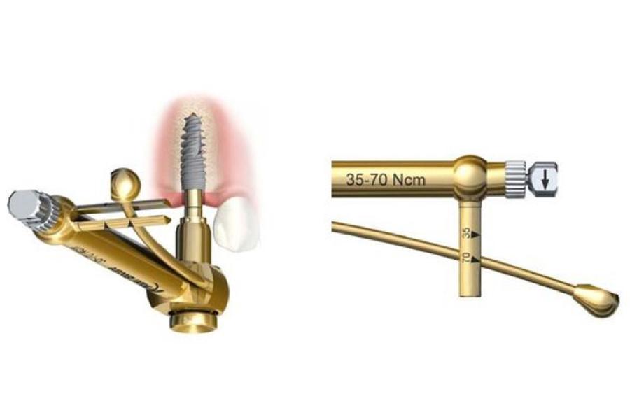 implantologia a carico immediato chiave dinamometrica