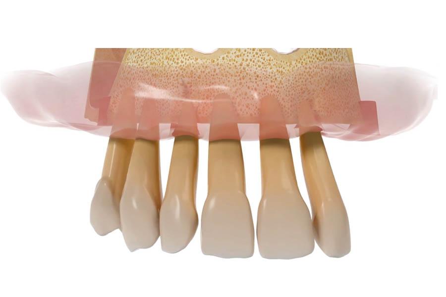 all on four estrazione denti
