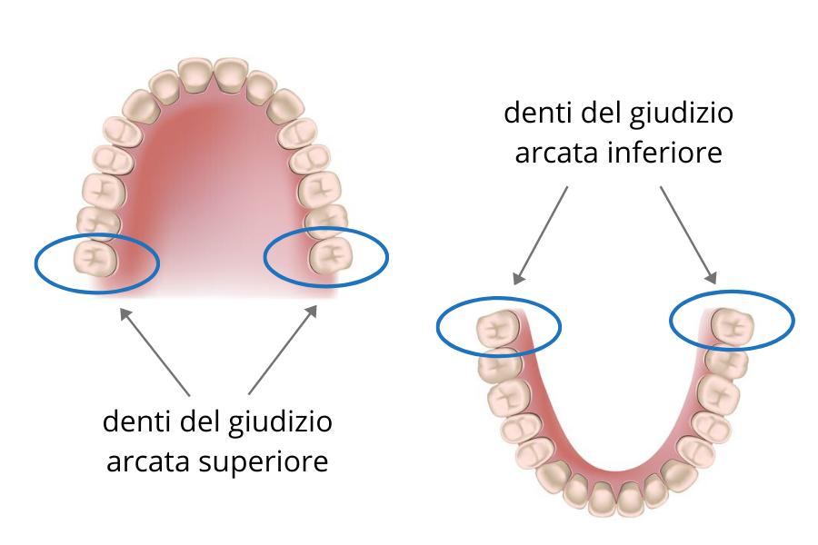 denti del giudizio - Dente del giudizio cause, sintomi e cura