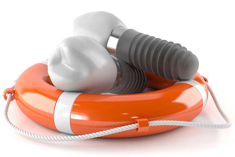 impianti dentali durata salvagente