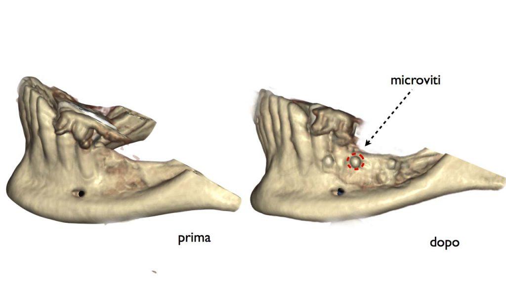 lamina corticale laterale 1 1024x576 - Lamina Corticale
