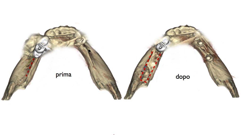 lamina corticale occlusale 1 1024x576 - Lamina Corticale